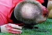 Trọng tài Europa League bị ném vỡ đầu, chảy máu bê bết