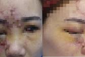 Liên tiếp mù mắt sau tiêm filler không đúng chỗ