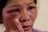 Kiến ba khoang tấn công, 25 công nhân nhập viện