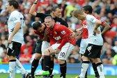 Tuyển Anh đau đầu vì Rooney chảy máu đùi