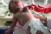 Một trẻ sơ sinh có tim nằm ngoài lồng ngực