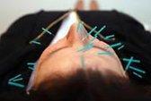 Châm cứu giảm đau sau phẫu thuật