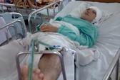 2 cha con bị thanh sắt rơi trúng đầu qua cơn nguy kịch