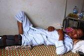 Phó công an xã bị tố đánh dân vỡ đầu gối