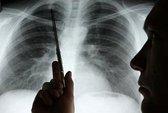 Phát hiện bệnh ung thư phổi bằng công nghệ 3D