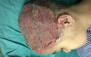 Thiếu nữ 17 tuổi bị hoại tử toàn bộ da đầu vì uốn tóc mừng sinh nhật