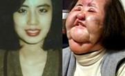 Mỹ nhân dao kéo khi có tuổi: Người vẫn đẹp khó tin, kẻ trở thành thảm họa