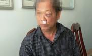 """Phóng viên VTV bị hành hung dã man sau khi báo tin bắt """"đất tặc"""""""