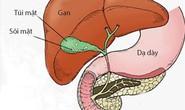 Kẻ thù của bệnh sỏi mật