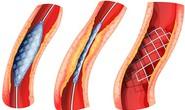 Điều trị tắc nghẽn  mạch máu ngoại biên