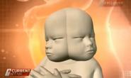 Dính liền hiếm gặp: Bào thai có hai mặt đối xứng nhau