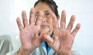 Bệnh lạ ở Quảng Ngãi: Thêm một ca tử vong
