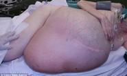 Phẫu thuật lấy khối u hơn 38 kg
