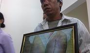 Xét xử 4 cựu công an xã đánh chết người