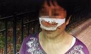 Trung Quốc: Cắn đứt mũi vợ do không nghe điện thoại