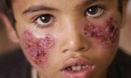 IS phát tán bọ ăn thịt người khắp Syria