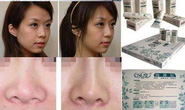 Sự thật về thần dược serum nâng mũi cho sóng mũi dọc dừa