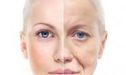 Rối loạn stress hậu sang chấn khiến lão hóa sớm