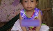 Vĩnh Long: Thiếu nữ 14 tuổi chỉ nặng 9,5 kg