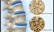 Phát hiện gien liên quan đến loãng xương ở người Việt