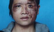 """Bị chồng bạo hành vì """"chát chít"""" trên mạng"""