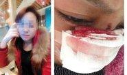 Trung Quốc: Cô gái bị chồng cắt mũi
