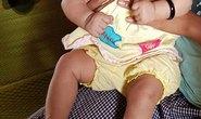 Một bé gái bị đầu nhỏ nghi do Zika