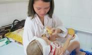 Bé gái 2 tuổi bị lột toàn bộ da đầu vì tai nạn giao thông