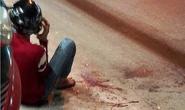 Một thiếu niên bị chém đứt bàn tay