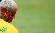 Brazil thắng đậm nhưng Neymar đổ máu