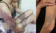 Điều tra vụ 1 cô gái bị người yêu hành hung dã man