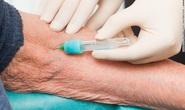 Chẩn đoán được Alzheimer nhờ… xét nghiệm máu