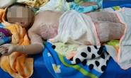 Dự tiệc nhà hàng, bé 3 tuổi bỏng nặng vì ngã vào nồi chè