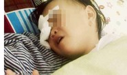 Chơi trong sân, bé 2 tuổi bị gà chọi đá hỏng mắt