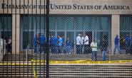 Điệp viên Mỹ bị tấn công âm thanh ở Cuba