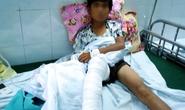 Trèo tường rào, nam sinh 13 tuổi bị hổ vồ trúng chân