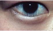 Đến Việt Nam, cô gái Mỹ cứu được con mắt bị bệnh hiếm gặp