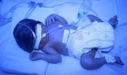 Cứu sống bé sinh non nặng hơn 1 kg