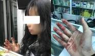 Nữ hành khách tố bị tài xế Uber đánh rách môi