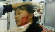 Nữ sinh 16 tuổi bị rạch mặt phải khâu gần 40 mũi