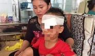 Chó nhà bất ngờ cắn nát vùng mặt bé trai 6 tuổi
