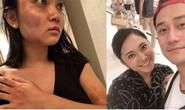 Sao Hoa ngữ gây tranh cãi vì bênh tài tử bạo hành bạn gái Nhật