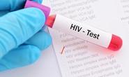 Phát hiện cơ chế giúp chữa khỏi HIV ngay trong não người