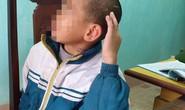 Bé trai 10 tuổi bị sư thầy bạo hành thâm tím khắp người