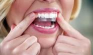 Có nên làm trắng răng thần tốc bằng miếng dán?