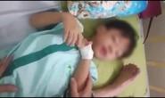 Cháu bé chết sau 1 tháng bị chó cắn nhưng không phải do bệnh dại