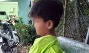 Học sinh tố bị cô giáo đánh bầm tím sườn, mông