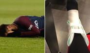 Neymar chấn thương nặng, Brazil vẫn… mừng