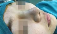 Sau làm đẹp tại spa, thiếu nữ vào bệnh viện cầu cứu
