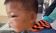 Bé 2 tuổi thâm tím mặt, nhập viện nghi bị bố dượng bạo hành